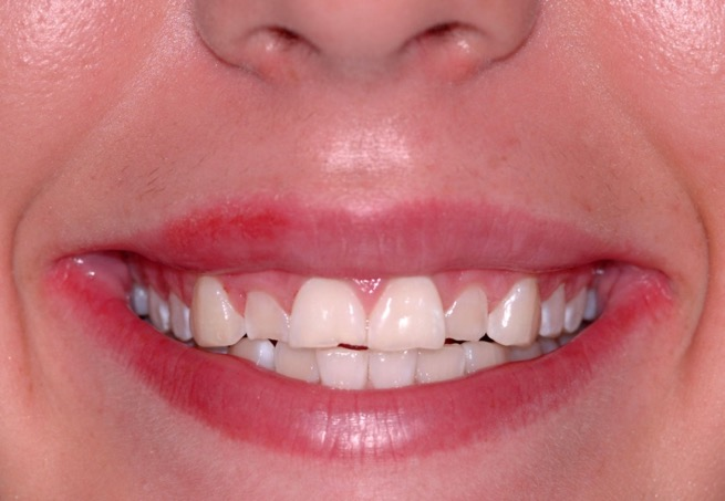 Esthetic Recontouring (Crown Lengthening) - Before