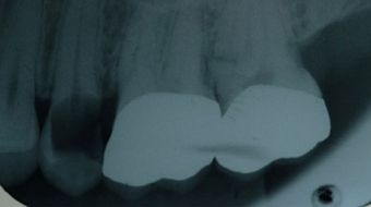 Broken tooth x-ray