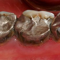 Gain of Natural Tooth Structure - Before