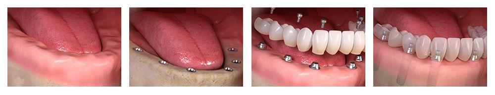 Implants to support dentures