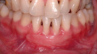 Free Gingival Graft