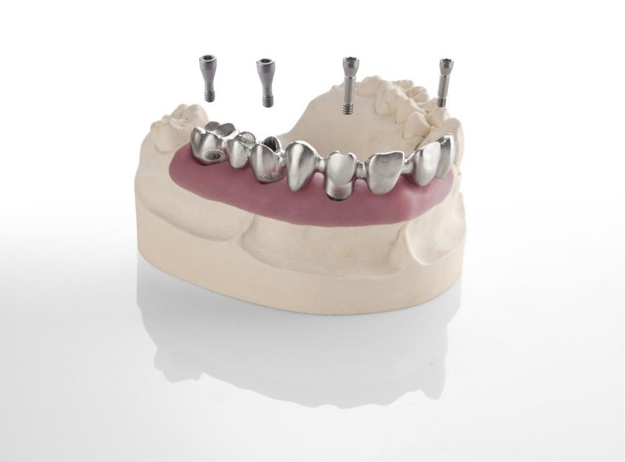 Implants to support teeth