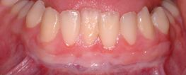 Free Gingival Grafts (non-root coverage) - After