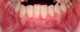 Free Gingival Grafts (non-root coverage) - Before